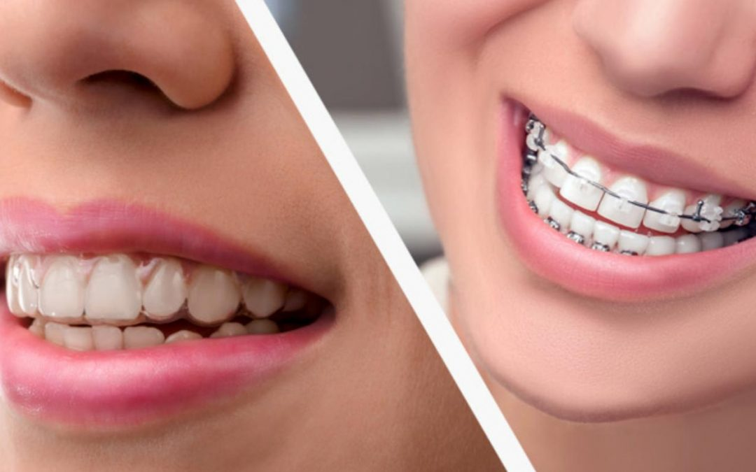 Smile Aligners Vs Braces